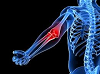 Tips to Avoid Tennis Elbow